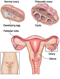 pathology of polycystic ovarian syndrome