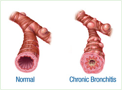 pathology of chronic bronchitis