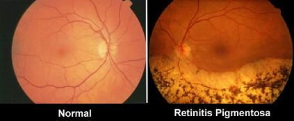 Differential diagnosis of retinitis pigmentosa
