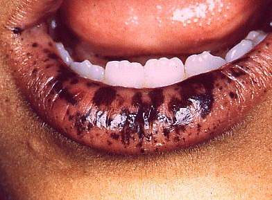 medical zone - oral pigmentation