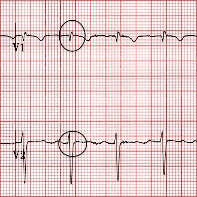 differential diagnosis of dominant R wave on v1