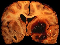 pathology of intracerebral hemorrhage