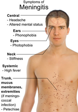Pathology of bacterial meningitis