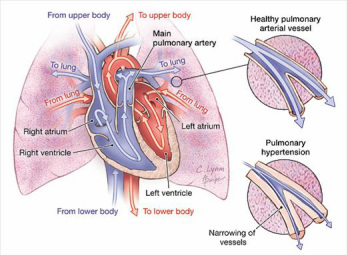 pathology of pulmonary hypertension
