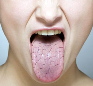 medical zone - dry mouth