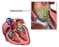 pathology of endocarditis