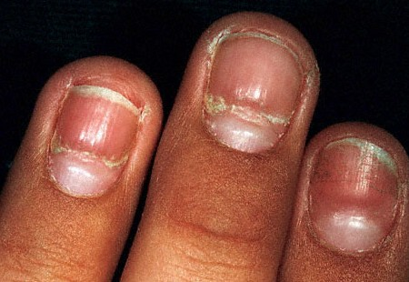 causes of nail abnormalities