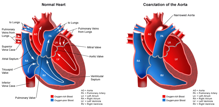 Pediatric definition - coarctation of aorta