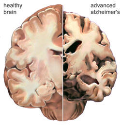 pathology of alzheimer disease