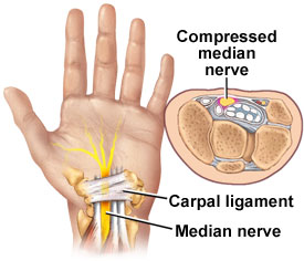 medical zone - carpal tunnel syndrome
