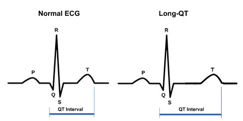 differential diagnosis of long qt interval