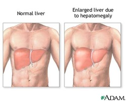 clinical examination of hepatomegaly