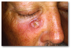 pathology of squamous cell carcinoma of the skin