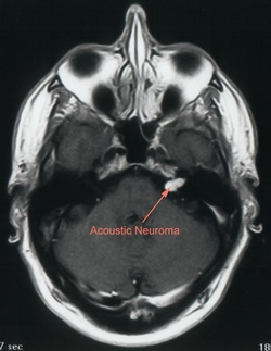 pathology of acoustic schwannoma