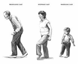 the causes of gait abnormalities