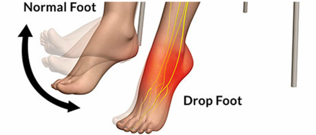 medical zone -foot drop