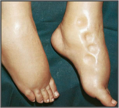 differential diagnosis - bilateral pitting ankle edema