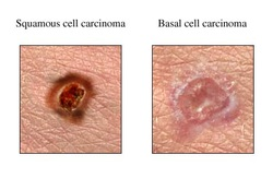 pathology of basal cell carcinoma