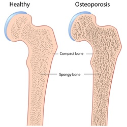 pathology of osteoporosis