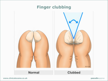 symptom finder- the causes of clubbing