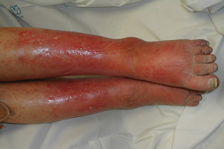 pediatric definition - cellulitis
