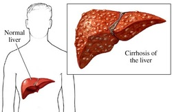 clinical examination of cirrhosis