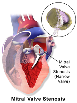 medical zone - mitral stenosis