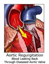 pathology of aortic regurgitation