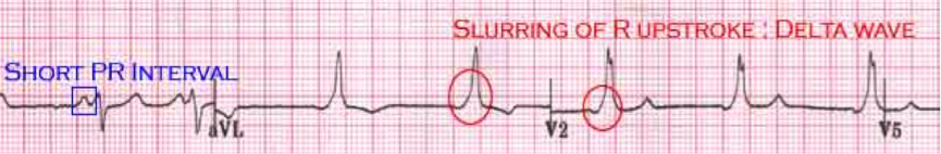 Differential Diagnosis of Short PR Interval