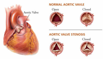 pathology of aortic stenosis