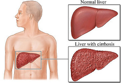 pathology of liver cirrhosis