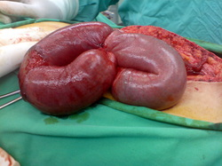 the causes of intestinal obstruction