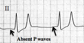 Differential Diagnosis of Absent P Wave on ECG