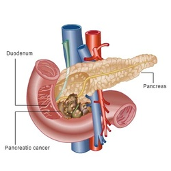 pathology of pancreatic carcinoma
