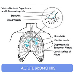 how to treat acute bronchitis