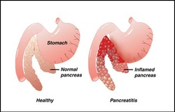pathology of pancreatitis